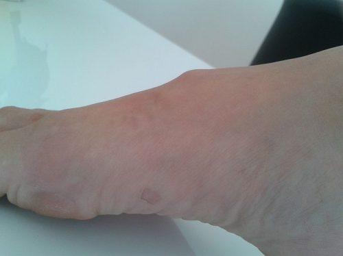 Überbein am Fuß ohne OP erfolgreich behandeln